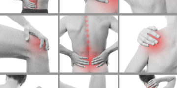 Types of Chiropractic Treatments